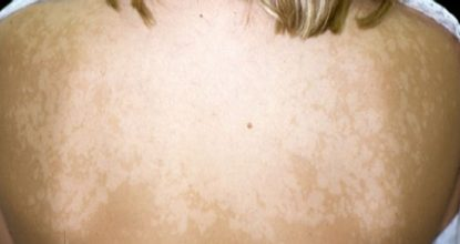 Pityriasis versicolor in humans: photos, symptoms and treatment, drugs