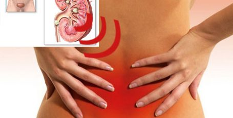 Kidney sand: symptoms in women and men, treatment, diet