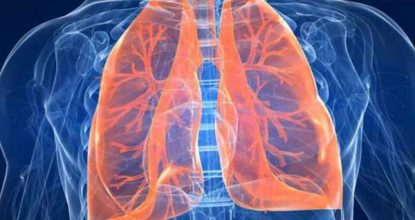 Pulmonary pneumosclerosis: causes, symptoms and treatment methods