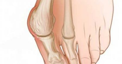 Why does the bone on the leg near the thumb hurt - what to do?