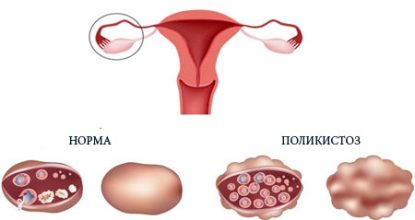 Polycystic ovaries: causes, symptoms and treatment