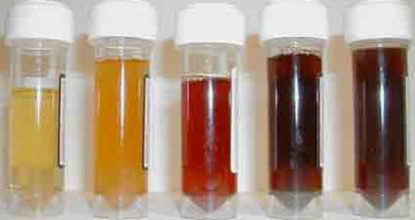 Causes of dark-colored urine in men and women, especially during pregnancy