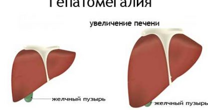 Hepatomegaly, what is it? Signs of liver changes, treatment and prognosis