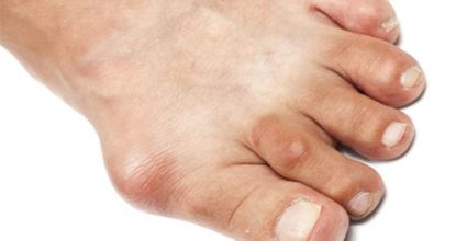 Gout: signs and treatment, nutrition and causes