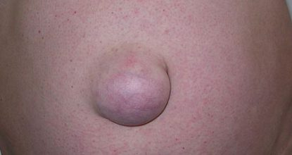 Umbilical hernia in adults: symptoms and treatment, surgery, complications, prognosis