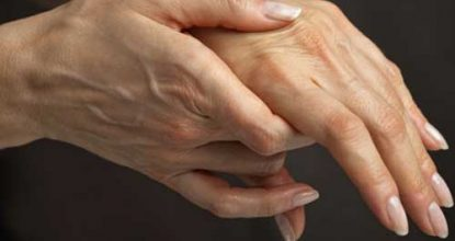 Rheumatoid arthritis: the first signs, symptoms and treatment