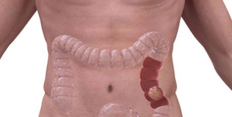 Bowel cancer: signs and symptoms, stages, treatment
