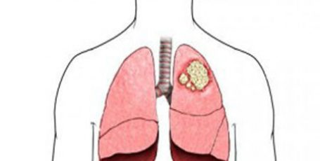Lung cancer: symptoms and signs, cancer rates, treatment and prognosis of life