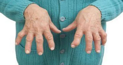 Rheumatoid arthritis of the fingers: causes, symptoms and treatment