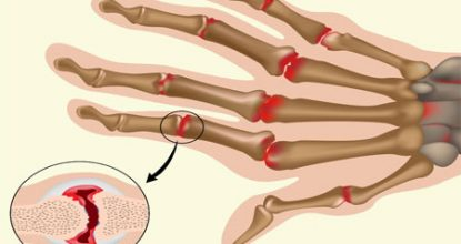 Rheumatoid arthritis: symptoms and treatment, complications