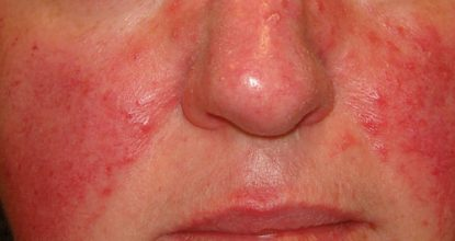Rosacea: causes, symptoms and treatment of rosacea on the face
