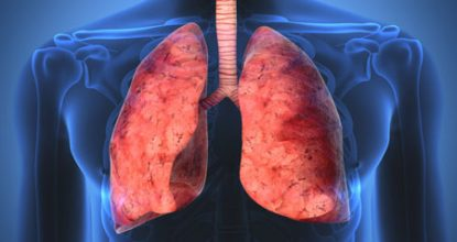 Lung sarcoidosis: forms, symptoms, and treatment