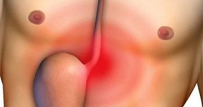 Reflux esophagitis: symptoms and treatment, diet, prognosis
