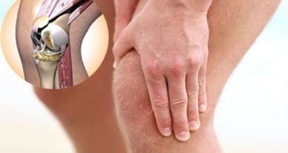 Arthritis of the knee: symptoms and treatment, causes and types of arthritis