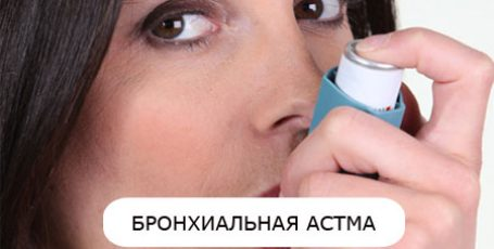 Bronchial asthma: causes, symptoms, treatment and prevention