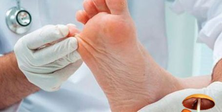 Symptoms of the foot fungus, how the fungus manifests itself - the methods of treatment, photo