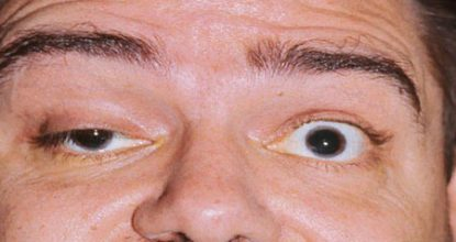 Myasthenia gravis: symptoms, treatment, causes and forms of the disease