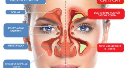 Sinusitis: symptoms and treatment, forms and prevention