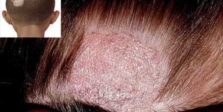 Ringworm in a person: photo, initial stage, symptoms and treatment