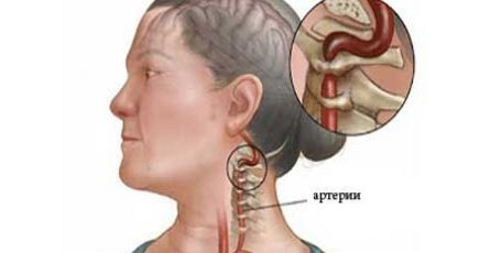 Syndrome of the vertebral artery: symptoms, diagnosis and treatment