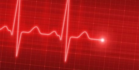 Sinus arrhythmia of the heart, what is it? Signs, types and treatment in children and adults