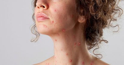 Chickenpox: adults also get sick