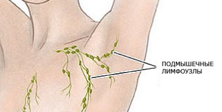 Inflammation of lymph nodes under the arm: causes and treatment